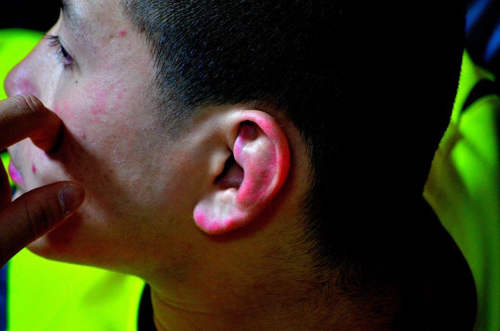 格闘家の耳 我が息子。。。 右耳に続き、左耳も(^^;) 柔の道は、激しさを増すば...  写真